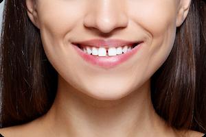 simpsonville orthodontist